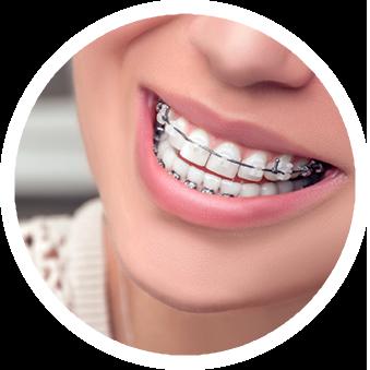 birmingham tuscaloosa orthodontics providing braces invisalign
