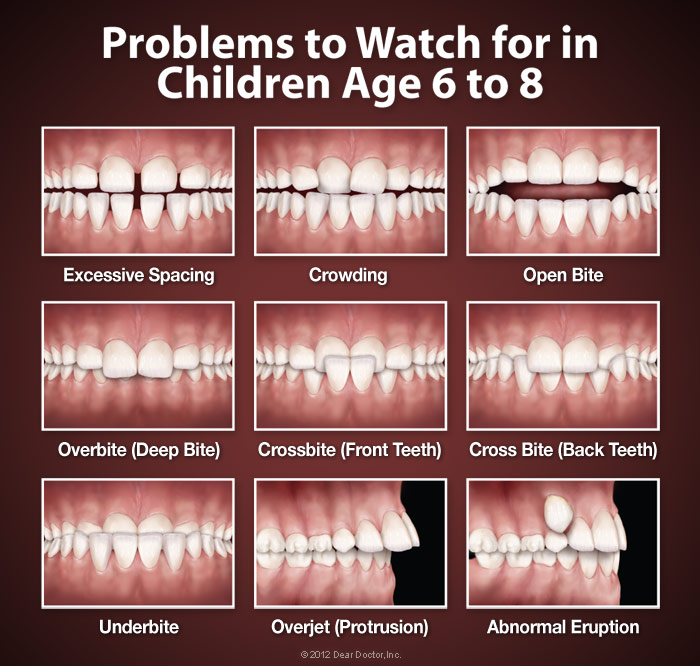 when to see an orthodontist